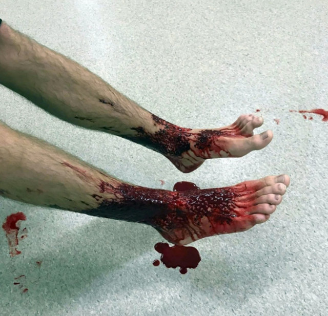 bloody-legs-1